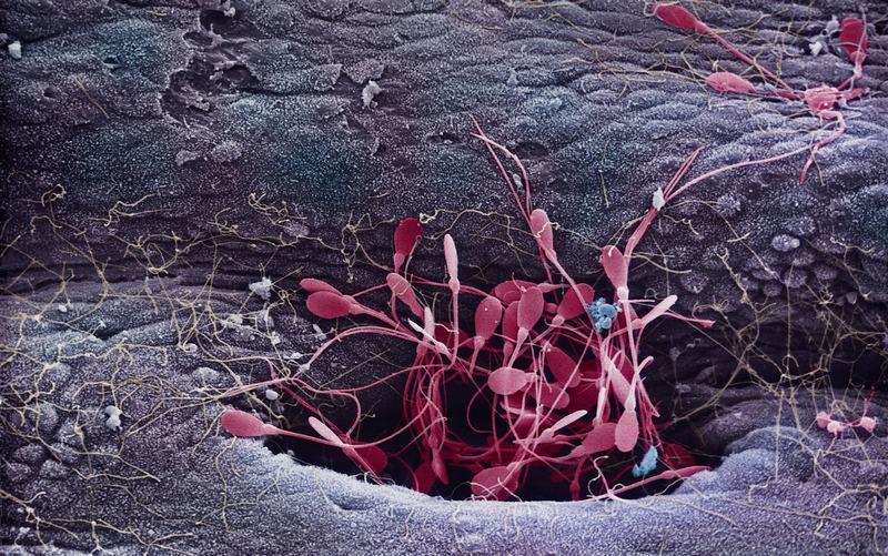 Вся ли мужская сперма имеет геном человека